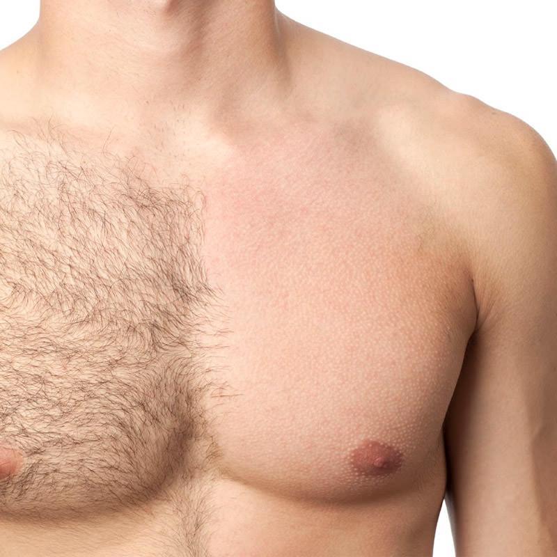 Depilacja laserowa dla mężczyzn