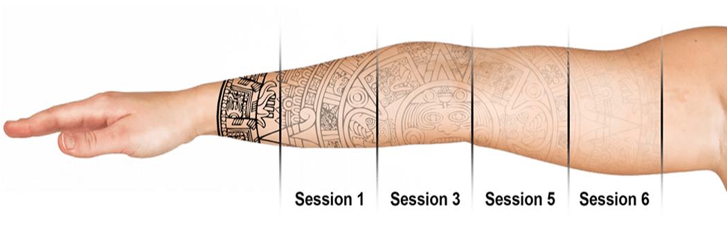 Jakie są metody usuwania tatuaży?