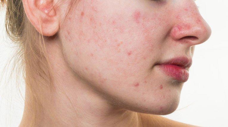 Jak poprawić stan skóry twarzy?